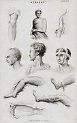 Various splints and bandages. Engraving c1880.
