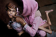 The mother of Samir, 14, a severely disabled boy, is brushing his teeth with her finger, while inside their home in Kasi Camp, one of the water-contaminated colonies near the abandoned Union Carbide (now DOW Chemical) industrial complex in Bhopal, central India, site of the infamous '1984 Gas Disaster'.