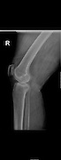 Knee X-ray of a 77 female patient suffering from Polymyalgia rheumatica and Chondrocalcinosis