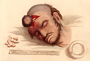 Hernia Cerebri: Rupture of the Dura Mater by the rapid growth of a brain tumour.  On the left are bone frgments removed from the rupture.  The bottom two figures are forms of dressing.  From 'Illustrations of the Great Operations of Surgery' by Charles Bell (London, 1821).  Hand-coloured engraving.