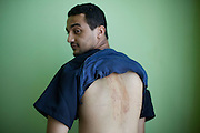 Sco0033837 .  Daily Telegraph..Mohammed Khalid Drah a 24 yr old medical student and volunteer at the Tripoli Medical Centre shows the scars on his back from a beating after being imprisoned for protesting by Gadaffi loyalists on 20th August...Tripoli 25 August 2011. ............Not Getty.Not Reuters.Not AP.Not Reuters.Not PA