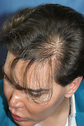 EXCLUSIVE<br /> Now the Human Ken Doll has a HAIR transplant to restore his locks - after the stress of a botched nose job caused a receding hairline<br /> <br /> He recently announced that he was quitting plastic surgery, but so-called Human Ken Doll Rodrigo Alves has just spent eight hours having hair implants at a cost of $15,000 (£11,000).<br /> The Brazilian-born Londoner underwent the procedure in LA, after stress caused him to lose 30 per cent of his hair. <br /> This latest treatment brings the 33-year-old's number of cosmetic procedures to 45. <br /> <br /> Last month Rodrigo announced he was quitting plastic surgery after his face was nearly destroyed when his seventh nose job went drastically wrong.<br /> His body rejected the nose and he suffered necrosis, where the flesh withers and dies, and recently underwent a seventh rhinoplasty surgery to fix the damage to his face.<br /> <br /> <br /> 'Due to the stress faced in my last few months I lost 30 per cent of my hair and I decided to have hair implants with stem cells performed by Dr John Kahen in Beverly Hills,<br /> <br /> 'It was a eight hour procedure under local anaesthesia. It doesn't hurt as such.<br /> <br /> 'It felt more like pins and needles in my head and a crackling sound at each time the doctor made a hole to implant another hair. The pain rate from one to ten I would give it three.'<br /> Rodrigo has declared himself delighted with the results and says that after just a week, the hair has been growing 'nice and strong'. <br /> He insists that he won't have plastic surgery after his seventh nose job went wrong, but had no intention of giving up aesthetic treatments.<br /> 'My body needs a break after so many surgeries one after the other,' he admitted. <br /> 'But I'm totally pro aesthetic procedures that be replace plastic surgery and can still improve my life style. <br /> <br /> <br /> The UK maybe is bit backwards when comes to the subject of plastic and cosmetic surgery, but we are ver