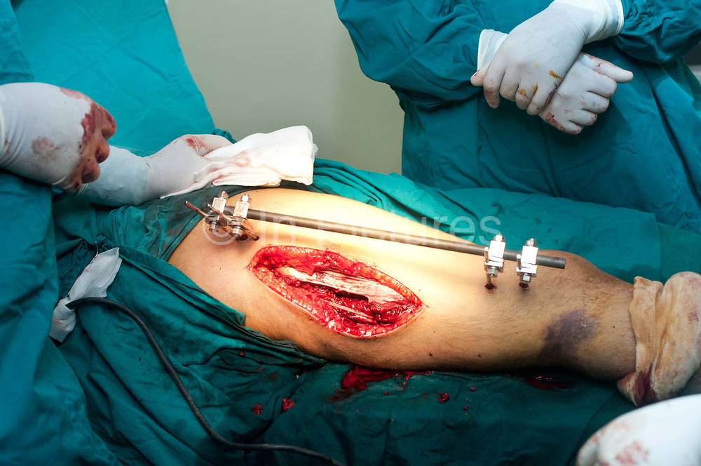Tatouine hospital, Tunisia. Surgeon applying external fixator to injured Libyan fighter.
