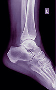 X-ray of an ankle of a 53 year old female patient with a fractured Medial Malleolus. Side View