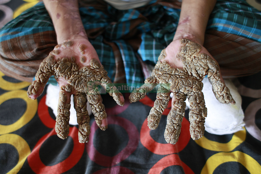 """September 18, 2016 - Dhaka, Bangladesh - Abul Bajandar, 26, sits on a hospital bad in Dhaka, Bangladesh, September 18, 2016. Doctors carried out several operations to remove extremely rare epidermodysplasia verruciformis warts from his hands and legs.  Abul, who was admitted to DMCH on January 30, has been suffering from an extremely rare genetic skin disease epidermodysplasia verruciformis, which is also referred to as """"Tree Man Disease."""" The disease is caused by a defect in the immune system. It causes abnormal susceptibility to human papilloma viruses (HPVs), which eventually leads to the overgrowth of scaly macules and papules, especially on the feet and hands. Abul is the fifth person in the world reported to be suffering from the disease. (Credit Image: © Suvra Kanti Das via ZUMA Wire)"""