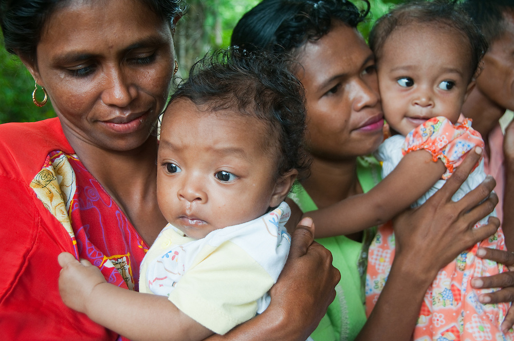 West Timor, Indonesia.  Poverty has led to a very high rate of malnutrition in this region.  Clinics have been set up to educate and treat victims of malnutrition. and mothers are strongly encouraged to nurse their babies as long as possible.