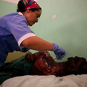 April 30, 2012 - Kauda, Nuba Mountains, South Kordofan, Sudan: A Nuba woman receives treatment to her severe burns, caused by bombardments by Sudan's Army warplanes in the village of Al Kanyard, in Gidel Hospital...Since the 6th of June 2011, the Sudan's Army Forces (SAF) initiated, under direct orders from President Bashir, an attack campaign against civil areas throughout the South Kordofan's province. Hundreds have been killed and many more injured...Local residents, of Nuba origin, have since lived in fear and the majority moved from their homes to caves in the nearby mountains. Others chose to find refuge in South Sudan, driven by the lack of food cause by the agriculture production halt due to the constant bombardments of rural areas. (Paulo Nunes dos Santos/Polaris)