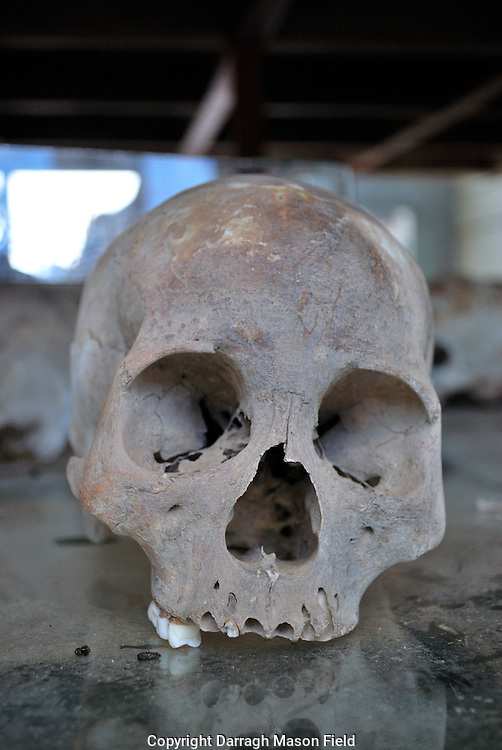 Skull with teeth missing of a young adult victim of the Khmer Rouge
