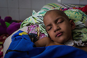 2016/05/29 - Barcelona, Venezuela: Ines Espinosa, 5, sleeps in a shared room of the children wing at Dr. Luis Razetti Hospital, Barcelona. Ines suffers from cancer.  (Eduardo Leal)