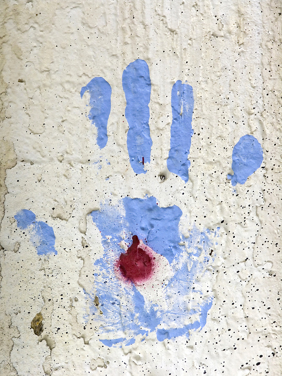 hand print with red dot in palm of hand