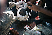 A protester injured when police fired tear gas canisters receives treatment from medical staff during a stand-off between anti-Government protesters and police at Government House in Bangkok.