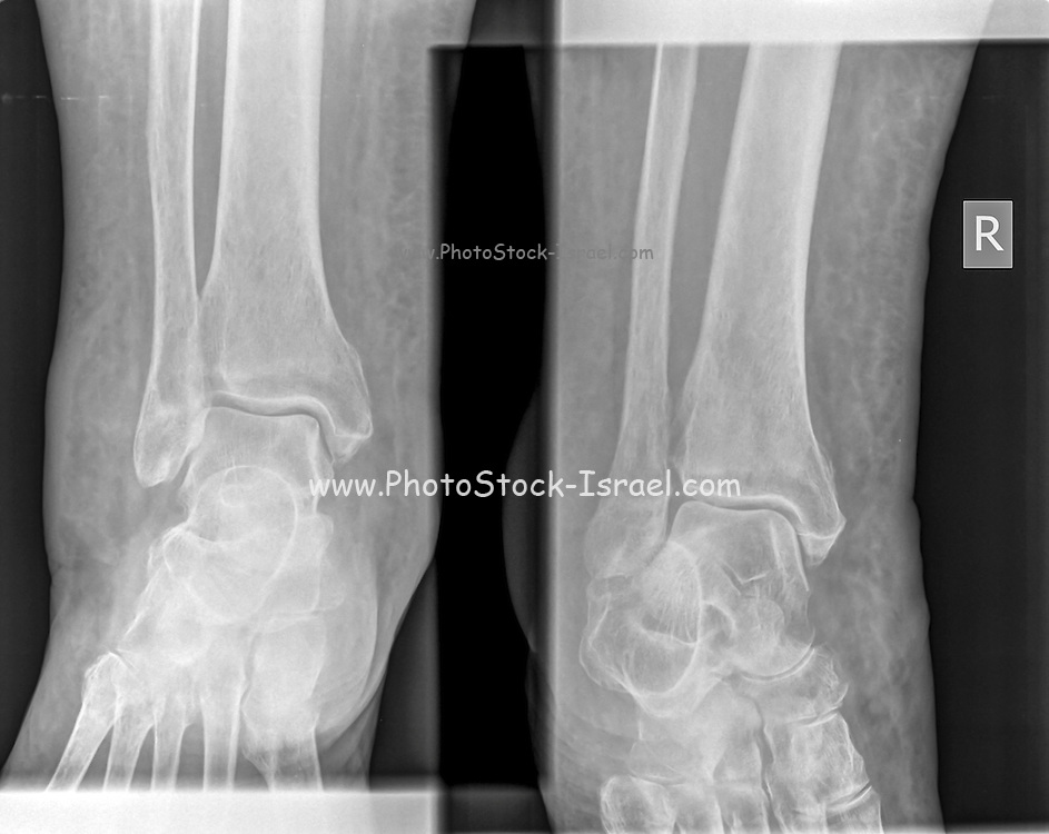 Healthy ankle joint x-ray of a 79 year old female patient. No fracture nor sprain can be seen