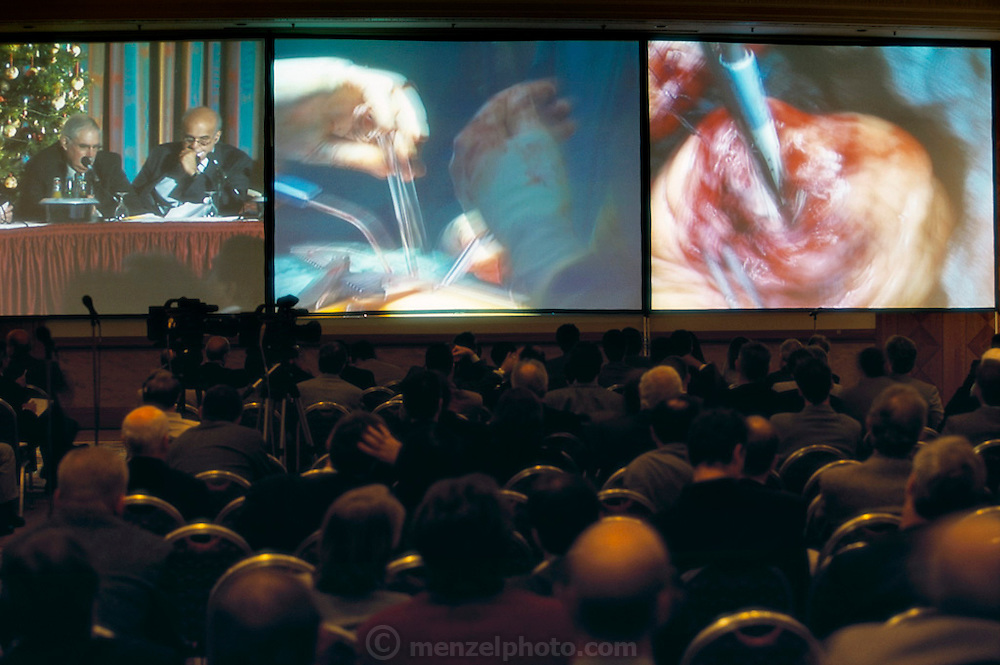Monitor view of heart surgeons watching their progress while performing minimally invasive heard surgery during a cardiac conference at Herzzentrum: Heart Center in Leipzig, Germany.