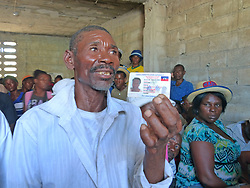 August 2, 2017 - Cite Soleil, HTI - A cholera victim holds up his Haitian national identification card as he discussed the psychological and physical scars of the waterborne disease. He is among scores of cholera victims who gather regularly in Haiti's Cite Soleil slum to get updates on their plea for individual compensation from the United Nations. (Credit Image: © Jacqueline Charles/TNS via ZUMA Wire)