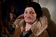 """A resettled woman from the exclusion zone around Chernobyl, in her home north west of Minsk where she bears the scars of """"walking into a tree branch"""". Chernobyl's human costs are widespread affecting about seven million people.A generation later children are being born with birth defects ,heart problems and thyroid cancer.The crippled economy of Belarus has led to poverty, social problems and domestic abuse.<br /> Photograph by Eamon Ward"""