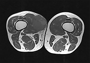 MRI of an a malignant tumour (Sarcoma) on the right thigh of adult's male patient scanned by  Magnetic Resonance Imaging (MRI)