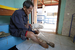 Khampieng 83 years old is an amputeewho comes into the centre to show other amputees just how easy it is to grow used to a new leg.<br /> Both have prosthetic legs provided by COPE and are able to walk very normally.   The COPE centre assists many people who have lost limbs due to UXO accidents. Pakse, Lao PDR.
