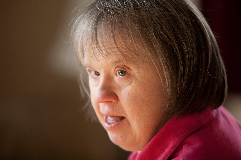 Mary Beth Solinski, a 59 year old, with Down Syndrome...Aging adults with Down Syndrome. In 1983, people with Down syndrome could expect to live to age 25. Today, their life expectancy is 60 years. We interview a 59-year-old patient who has outlived her parents and is now in AARP. She has trouble walking, but has lots of interests, such as cooking, arts and crafts and reading.