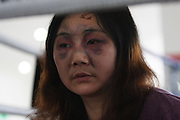 A woman with bruises on her face, after being injured in a powerful earthquake in a refugee camp in Mianyang, China.