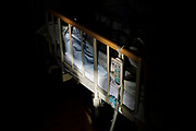 The bed frame of the cancer patient is lit by the sunlight on November 20th, 2019 at Aiwa Hospice in Nagano, Japan.