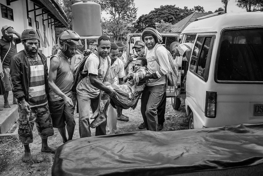 Terry traveled hundreds of miles from his village in Lani Jaya to reach the main hospital in Wamena.  His family paid over $100 to charter a vehicle for transportation.  Already in the late stages of AIDS (Stage 4), Terry was carried onto a stretcher because he was too weak to walk.  He had stopped taking his ARV medication because he lived too far from the health center that provided refills and follow-up care.   <br /> <br /> <br /> Many health facilities that provide services and support for HIV/AIDS are located mainly in cities, far away from the majority of indigenous Papuans who live in rural villages.  Due to Papua's arduous terrain, these health centers are often reachable only by planes or sport utility vehicles.  However, the high costs of fuel and expensive fare for transportation means that native Papuans living outside urban settings have limited access to essential care and treatment.<br /> <br /> In Jayawijaya, a mountainous region in central Papua, the average cost for a round trip on public transportation to a neighboring town could cost as much as one's daily earning.  Gas can cost up to $20 per gallon and one might have to travel a full day or more just to reach the nearest health center.  As a result, those who are too sick to make the long journey or cannot afford to pay for transportation end up without treatment.  And those who are fortunate enough to get to a clinic or hospital often wait too long before making the trip.  In many cases, they arrive at the medical center in critical condition with little hope of surviving.