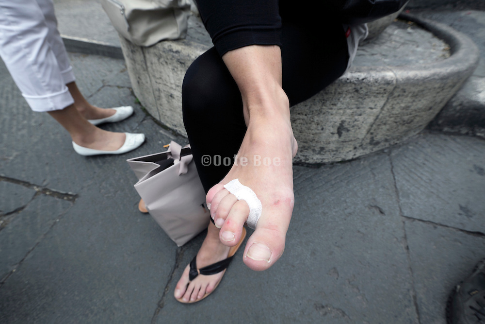 woman using first aid to protect foot skin from further rubbing through