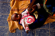 A woman waits with her newly scared child for a check up at a remote health care post in Mali.