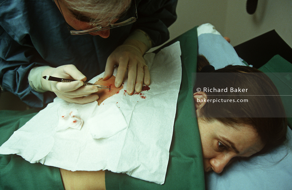 A woman patient has her mole removed during a local procedure at a clinic in the City of London