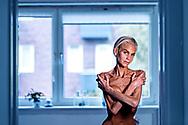 AnorekSigne med det borgerlige navn Signe Grønnebæk har lidt af en alvorlig spiseforstyrrelse i mere end 16 år. Hun har nu udgivet en bog om sit liv som spiseforstyrret. <br /> Signe har en dårlig dag- hun har været syg og taget to kilo på og det generer hende.