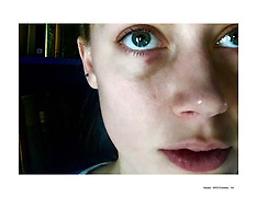 Injuries Amber Heard claims she sustained - Dec 2015