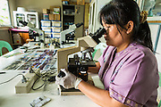 20 MAY 2013 - MAE KASA, TAK, THAILAND:  A Burmese technician counts white blood cells during a malaria test in the lab in the SMRU clinic in Mae Kasa, Thailand. Everybody who comes to the clinic is tested for malaria. Health professionals are seeing increasing evidence of malaria resistant to artemisinin coming out of the jungles of Southeast Asia. Artemisinin has been the first choice for battling malaria in Southeast Asia for 20 years. In recent years though,  health care workers in Cambodia and Myanmar (Burma) are seeing signs that the malaria parasite is becoming resistant to artemisinin. Scientists who study malaria are concerned that history could repeat itself because chloroquine, an effective malaria treatment until the 1990s, first lost its effectiveness in Cambodia and Burma before spreading to Africa, which led to a spike in deaths there. Doctors at the Shaklo Malaria Research Unit (SMRU), which studies malaria along the Thai Burma border, are worried that artemisinin resistance is growing at a rapid pace. Dr. Aung Pyae Phyo, a Burmese physician at a SMRU clinic just a few meters from the Burmese border, said that in 2009, 90 percent of patients were cured with artemisinin, but in 2010, it dropped to about 70 percent and is now between 55 and 60 percent. He said the concern is that as it becomes more difficult to clear the parasite from a patient, progress that has been made in combating malaria will be lost and the disease could make a comeback in Southeast Asia.    PHOTO BY JACK KURTZ