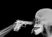 x ray of a hand pointing a handgun at someones head