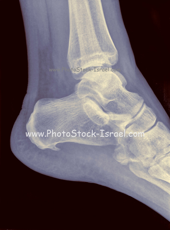 X-ray of a heel showing Plantar fasciitis (also known as Plantar fasciopathy or Jogger's heel) is a common painful enthesopathy of the heel and plantar surface of the foot characterized by inflammation, fibrosis, or structural deterioration of the plantar fascia of the foot. 48 year old male.