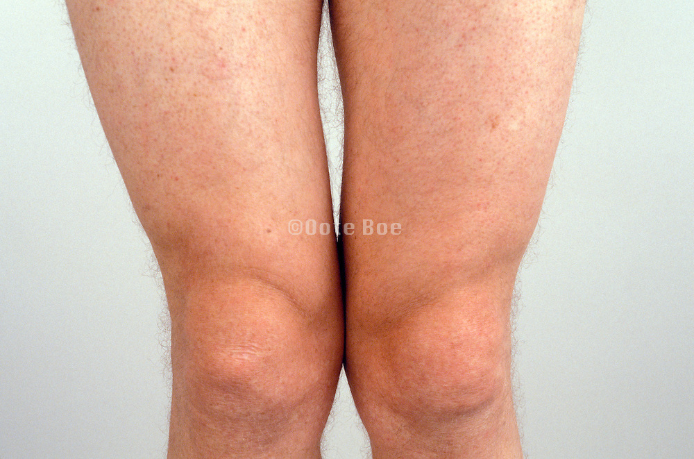 upper part of legs of a man with the knees