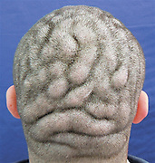 Man suffers rare medical condition that makes his scalp look like a brain<br /> <br /> It looks like this man has had the folds of his brain tattooed across his head - but instead this is a rare medical condition.<br /> The skull of the 21-year-old Brazilian patient, described this week in the New England Journal of Medicine, looked perfectly normal two years ago.<br /> But then his scalp started to change, growing thicker in irregular places, resulting in bizarre folds of thicker skin across his head in a pattern that unintentionally mirrors the shape of the brain.<br /> <br /> <br /> Two Brazilian doctors studied the un-named man's condition - a rare one known as 'cutis verticis gyrata' - and reported no other symptoms affecting the man.<br /> <br /> While he is described as a 'intellectually impaired', he does not have any psychiatric or neurological conditions and his poor performance at school is not said to be linked to his scalp condition.<br /> <br /> Instead the condition is benign, if bizarre, and affects him only cosmetically - in fact, the man is said to be quite proud of his condition.<br /> Dr. Karen Schons a dermatologist at the Hospital Universitario de Santa Maria, who studied the patient, said: 'The patient did not have the habit of covering his head ... The condition did not bother him cosmetically.<br /> 'It's a benign and essentially aesthetic condition.'<br /> Cutis verticis gyrata occurs more commonly in men, and usually develops shortly after puberty.<br /> The cause of the deformation is not known, although sometimes it does seem to correlate with brain-related disorders such as schizophrenia and seizures.<br /> While surgery can improve the appearance of the scalp, it is costly, and requires regular follow-up treatments - and as this man is happy with his looks, in this case it was not required.<br /> ©exclusivepix