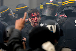October 9, 2018 - Paris, Ile-de-France, France - A demonstrator is injured during a rally called by several French workers unions  as part of a nationwide day of demonstrations against French President Emmanuel Macron's policies. (Credit Image: © Michel Stoupak/NurPhoto via ZUMA Press)