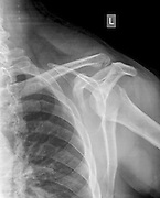 Shoulder x-ray of a 40 year old male patient with a fractured clavicle front view