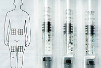 Syringe dosage of Rebif against injection instructions. A one month supply of Rebif can cost anywhere from $1,600 to more than $2,000 USD. Rebif is a disease-modifying drug (DMD) used to treat multiple sclerosis in cases of clinically isolated syndromes as well as relapsing forms of multiple sclerosis and is similar to the interferon beta protein produced by the human body. It is co-marketed by EMD Serono and Pfizer in the US under an exception to the Orphan Drug Act. It was approved in Europe in 1998 and in the US in 2002 and is registered in more than 80 countries worldwide. Rebif is administered via subcutaneous injection three times per week, and can be stored at room temperature for up to 30 days.