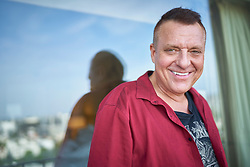EXCLUSIVE: FILE PICS: Actor Tom Sizemore, pictured before and after his hair transplant surgery at The Beverly Hills Center for Plastic & Laser Surgery. photographs taken 2017. 25 Jan 2019 Pictured: Tom Sizemore . Photo credit: John Chapple / JohnChapple.com / MEGA TheMegaAgency.com +1 888 505 6342