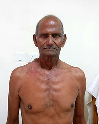 April 5, 2017 - UTTARAKHAND, INDIA- APRIL, 4, 2017: After surgery picture of Bheem Sen, 55, who had a major tumour removed at Jeewan Rekha Hospital, in Uttarakhand, India.....He underwent surgery after doctors found that he had a severe case of Lipoma with ulceration. His huge 6 year old spherical shaped tumour weighing over 1.5 kg was removed in a hour long surgery by a team of seven doctors at Jeewan Rekha Hospital.....Bheem has now been discharged from the hospital and is under constant observation with regular follow ups.....Pictures supplied by: Cover Asia Press (Credit Image: © Cover Asia Press/Cover Asia via ZUMA Press)