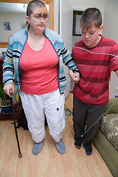 Young carer helping his mother; who is severely asthmatic; to walk across room whilst holding her oxygen tubes,