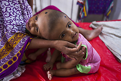 July 29, 2017 - Dhaka, Bangladesh - Twin sister Rabeya Islam and Rokeya Islam play at a hospital in Dhaka, Bangladesh, 29 July 2017. The twins have been admitted to a government hospital for examination before potentially surgery to separate their heads. (Credit Image: © Ahmed Salahuddin/NurPhoto via ZUMA Press)
