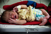 Abdullah Kodhum, a young 4-day-old boy affected by a severe case of hydrocephalus and spina bifida, is lying inside a room of the children's ward of the Fallujah General Hospital, Iraq. Around 15 per cent of children at the hospital are now being born with some sort of congenital defect. The average elsewhere in the world is believed to be between 2 and 4 per cent.