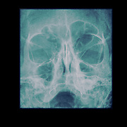 A 65 year old male suffering from Sinusitis. X-ray of the paranasal sinuses