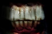 dientes de caballo