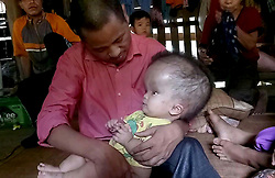 August 9, 2017 - Manipur, India - Lhunkhomang Kipgen, 43, a daily wage labourer, holding his six-month-old son Seiminsang Kipgen at his residence in Manipur. Seiminsang Kipgen was born with a rare case of Hydrocephalus where the cerebrospinal fluid accumulates in the brain, causing extreme swelling and a buildup of pressure. He weighs around 33 lbs while his head alone weighs 22 lbs. (Credit Image: © Kaybie Chongloi/Cover Asia via ZUMA Press)