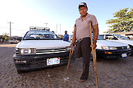 """Fructuoso Yerbas, Union's leader and coca grower, los his leg duirng the struggle against te""""coca zero plan"""" managed by DEA. Nowadays he's just  a taxi driver, he definitively lost his field."""