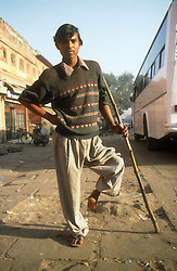 Man with deformed leg using a stick to support himself,