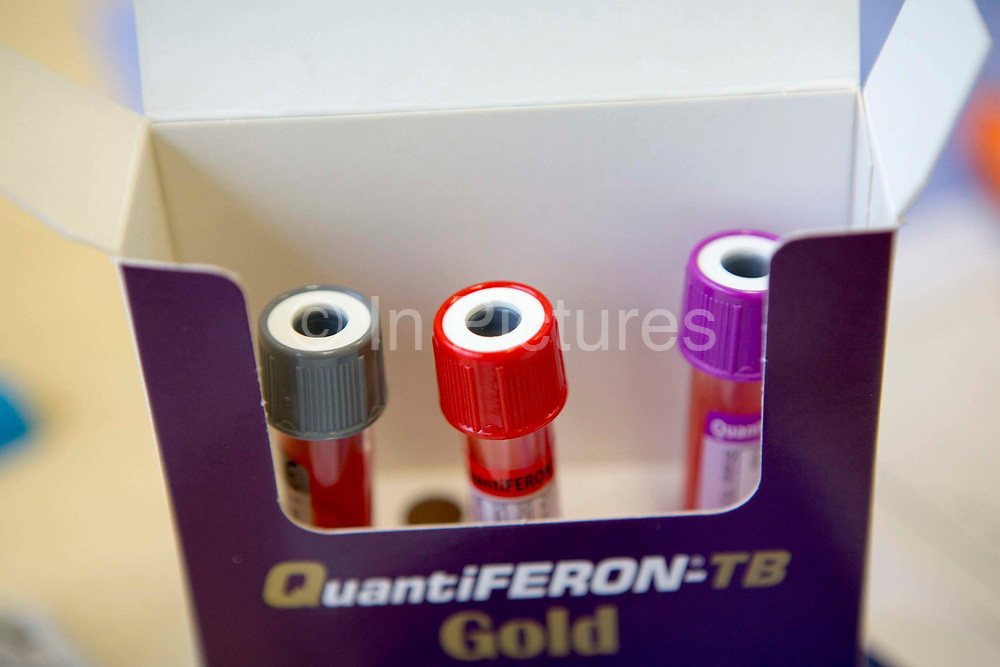 Three blood sample bottles packed in a QuantiFERON-TB Gold box.  The blood tests are used to detect latent TB infection in patients as is know as Interferon gamma release assay (IGRA).
