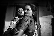 Poona Bai, 40, a '1984 Gas Survivor', is holding her son Raj, 7, a boy suffering from a severe neurological disorder, while standing in front of their home in Oriya Basti, one of the water-affected colonies in Bhopal, Madhya Pradesh, central India, near the abandoned Union Carbide (now DOW Chemical) industrial complex.